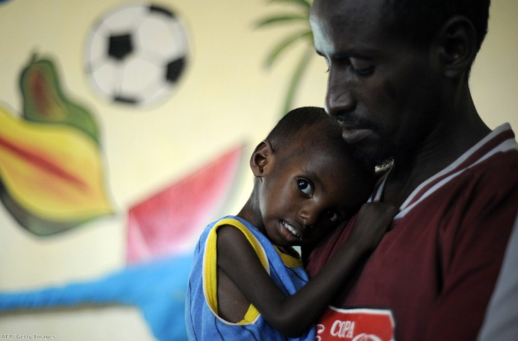 Aden, a three-year-old Somali refugee, recovers at a stabilisation centre after arriving on the verge of death from severe malnutrition